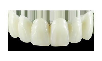 All Ceramics Mindcraft Dental Creations